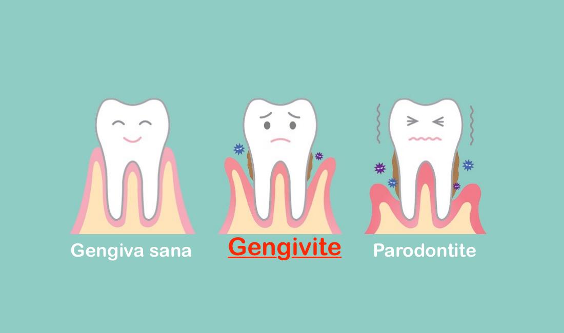 Gengivite Studio dentistico Emanuele convenzionato Palermo