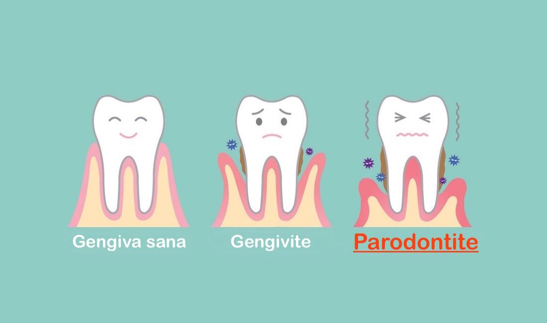 Parodontite Studio dentistico Emanuele convenzionato Palermo